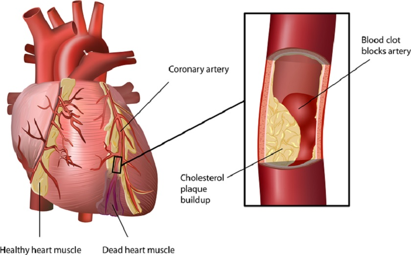 Heart Block Vein Natural Remedy