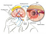 Migraine Headache Overview and Its Different Types